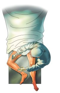 Surgical procedure illustration for UNM Department of Orthopedics