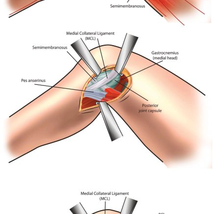 Surgical procedure illustration for UNM Department of Orthopedics